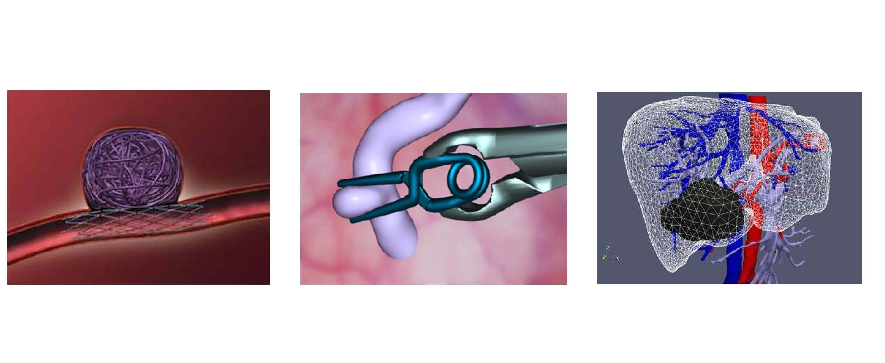 TTWorkshop Biomedical simulations